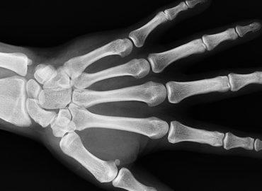 bones of hand to display bone leaching